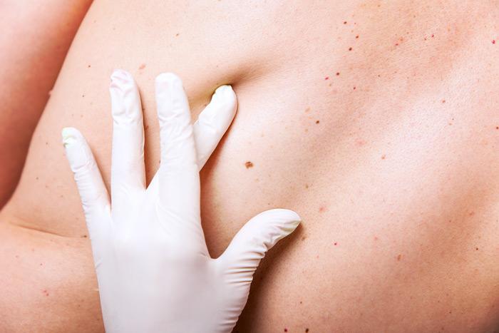 Skin Cancer Early Detection Hudson Fl Gulf Coast Dermatology